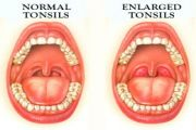 What Causes Large Tonsils in Kids and How to Treat?